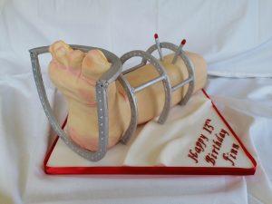 Leg and Brace Cake